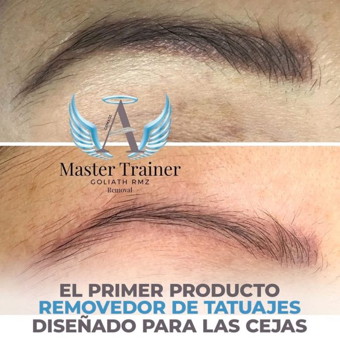 01 - first tattoo removal product designed for the eyebrows