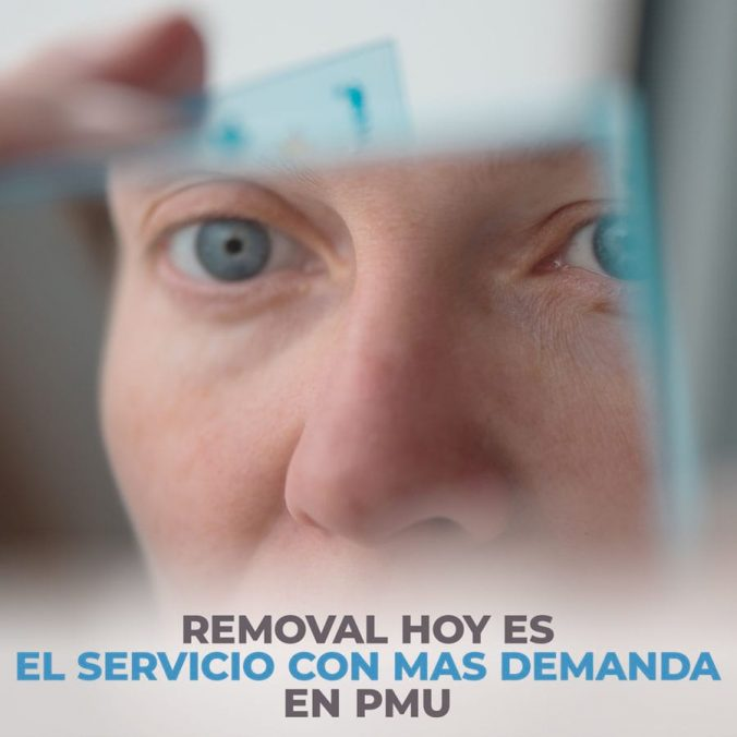 01 removal is the most in demand service in pmu today