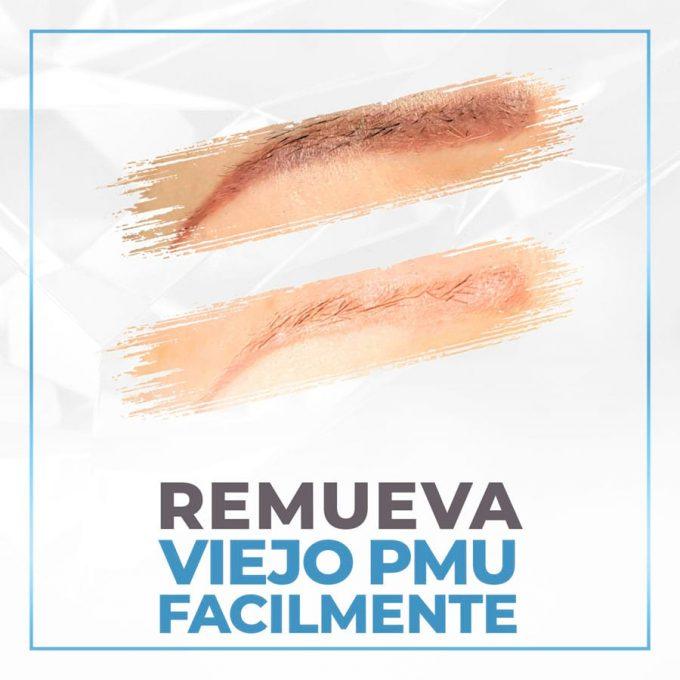 02- easily remove old pmu