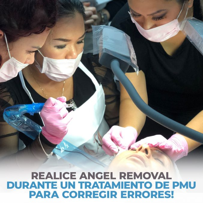 04 perform angel removal during a pmu treatment