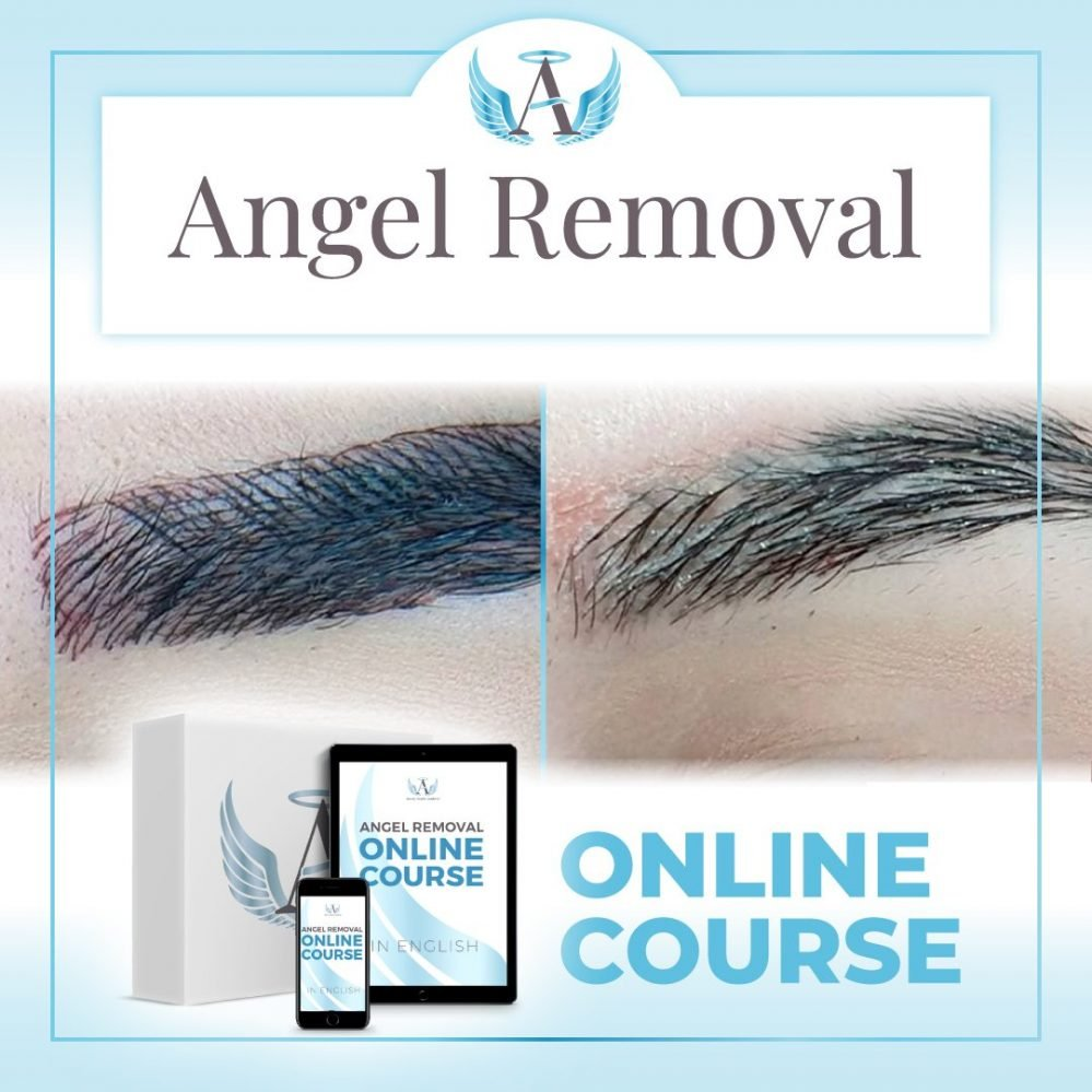 Angel Removal